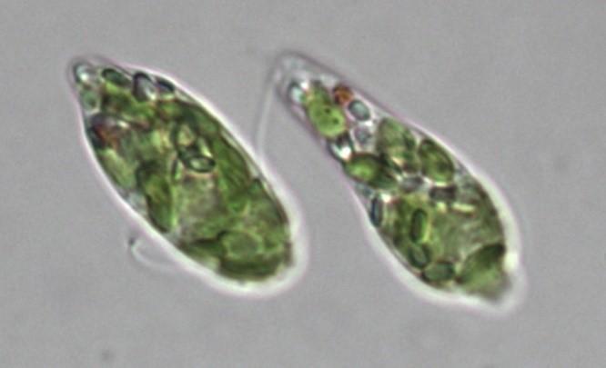 ユーグレナグラシリス
